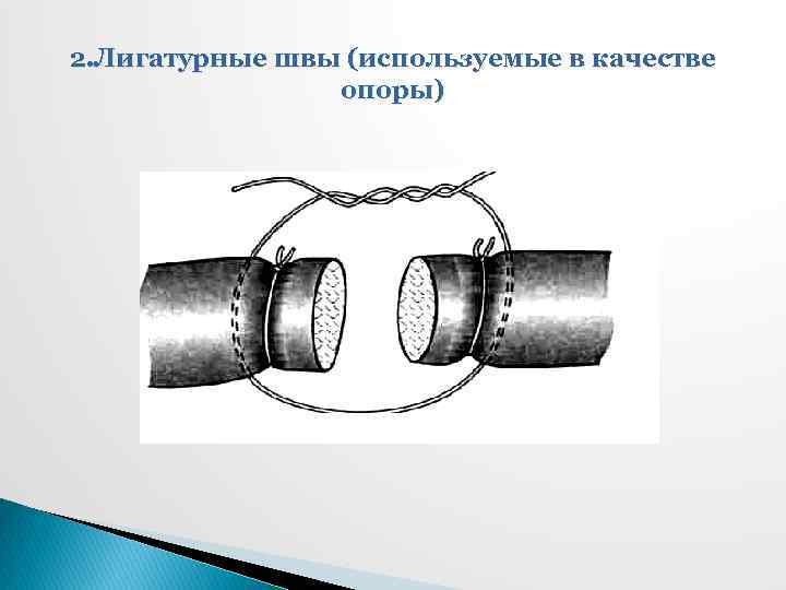2. Лигатурные швы (используемые в качестве опоры)