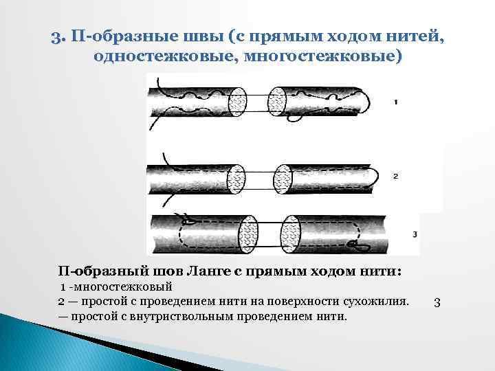 3. П-образные швы (с прямым ходом нитей, одностежковые, многостежковые) П-образный шов Ланге с прямым
