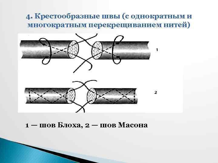 4. Крестообразные швы (с однократным и многократным перекрещиванием нитей) 1 — шов Блоха, 2