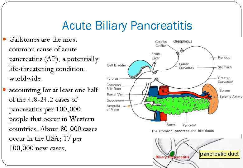 Acute Biliary Pancreatitis Gallstones are the most common cause of acute pancreatitis (AP), a