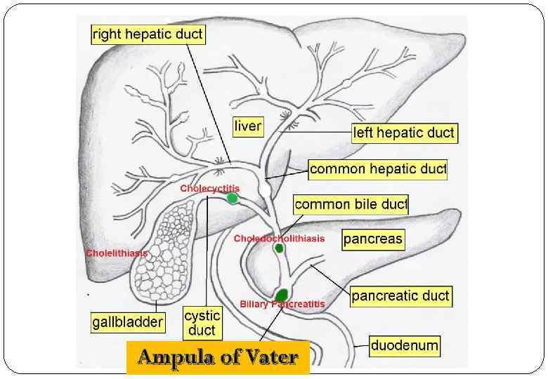 Ampula of Vater