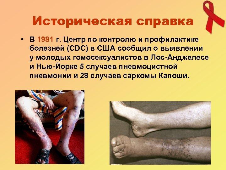 Историческая справка • В 1981 г. Центр по контролю и профилактике болезней (CDC) в