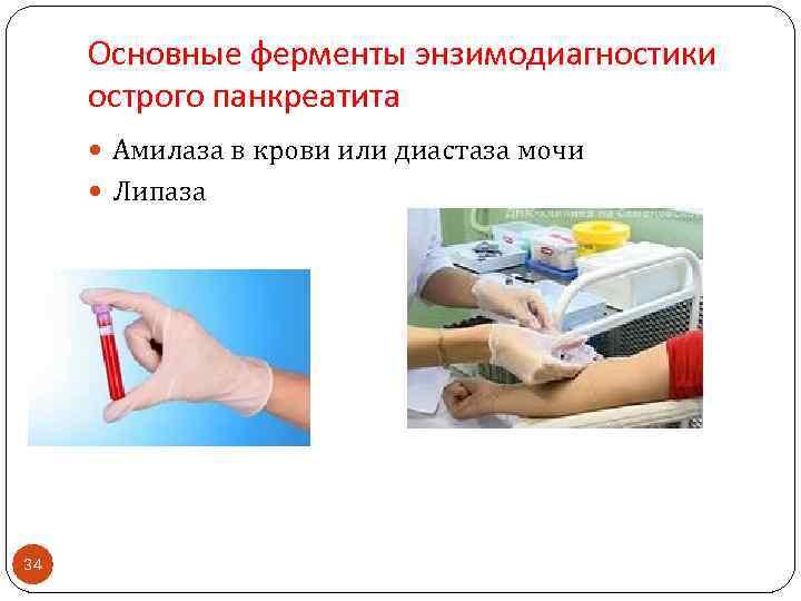 Основные ферменты энзимодиагностики острого панкреатита Амилаза в крови или диастаза мочи Липаза 34