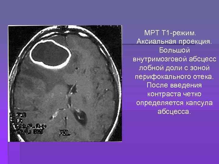 МРТ Т 1 -режим. Аксиальная проекция. Большой внутримозговой абсцесс лобной доли с зоной перифокального