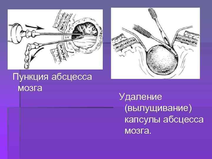 Пункция абсцесса мозга Удаление (вылущивание) капсулы абсцесса мозга.
