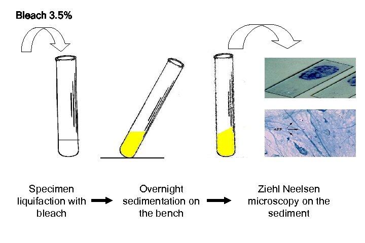 Bleach 3. 5% Specimen liquifaction with bleach Overnight sedimentation on the bench Ziehl Neelsen