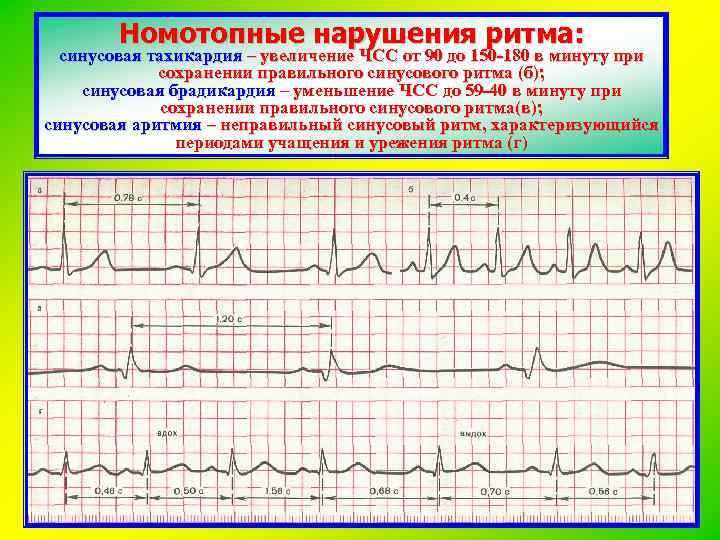 Синусовая тахикардия у беременных 3