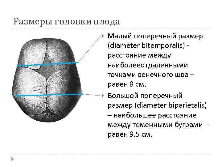 Размеры головки плода Малый поперечный размер (diameter bitemporalis) расстояние между наиболееотдаленными точками венечного шва
