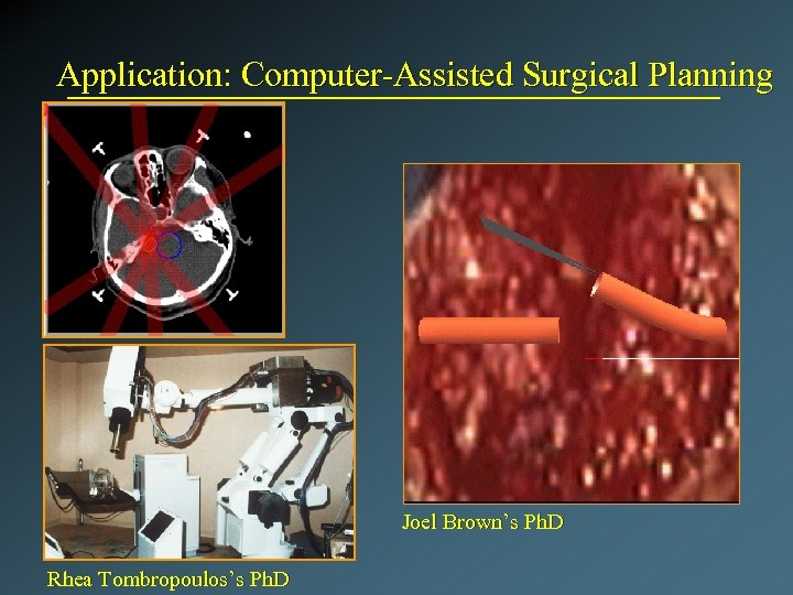 Application: Computer-Assisted Surgical Planning Joel Brown's Ph. D Rhea Tombropoulos's Ph. D