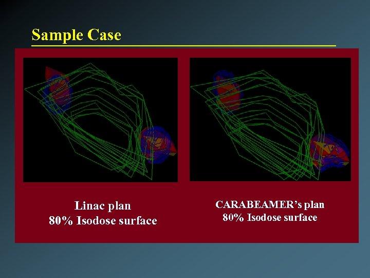 Sample Case Linac plan 80% Isodose surface CARABEAMER's plan 80% Isodose surface