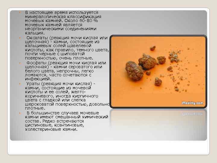 В настоящее время используется минералогическая классификация мочевых камней. Около 60 -80 % мочевых