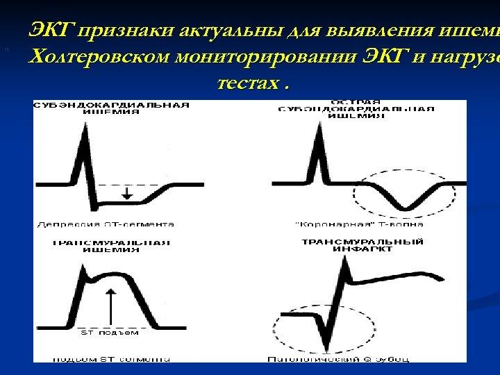 • ) ЭКГ признаки актуальны для выявления ишеми Холтеровском мониторировании ЭКГ и нагрузо