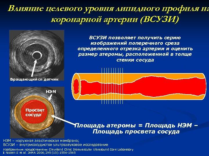 Влияние целевого уровня липидного профиля на коронарной артерии (ВСУЗИ) ВСУЗИ позволяет получить серию изображений