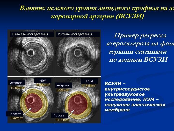 Влияние целевого уровня липидного профиля на ат коронарной артерии (ВСУЗИ) В начале исследования Атерома