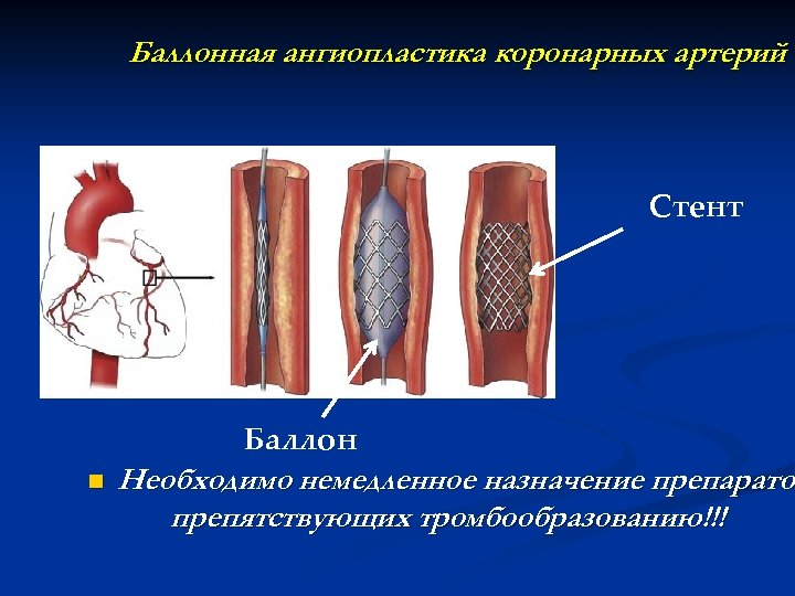 Баллонная ангиопластика коронарных артерий Стент Баллон n Необходимо немедленное назначение препаратов препарато препятствующих тромбообразованию!!!
