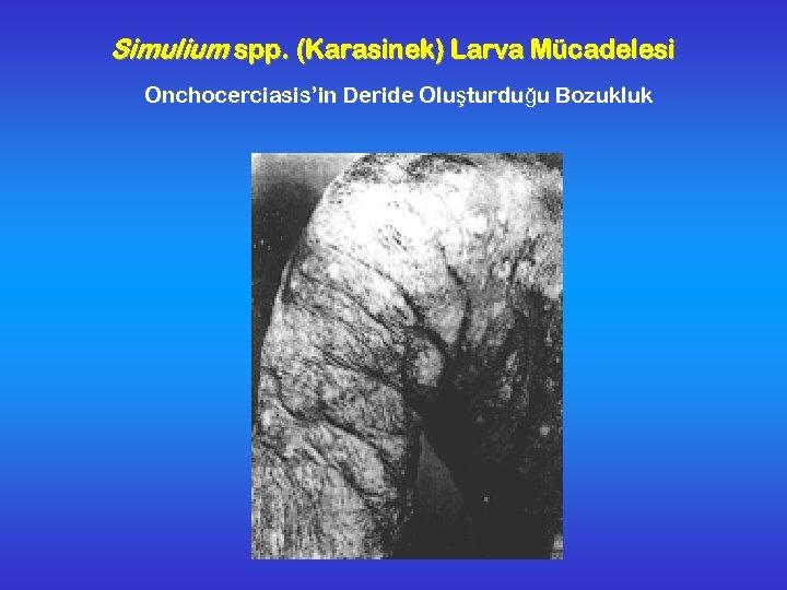 Simulium spp. (Karasinek) Larva Mücadelesi Onchocerciasis'in Deride Oluşturduğu Bozukluk