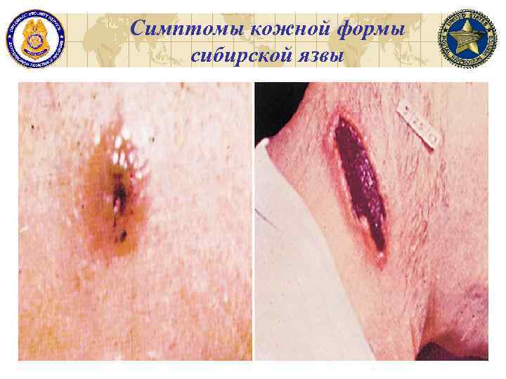 Симптомы кожной формы сибирской язвы