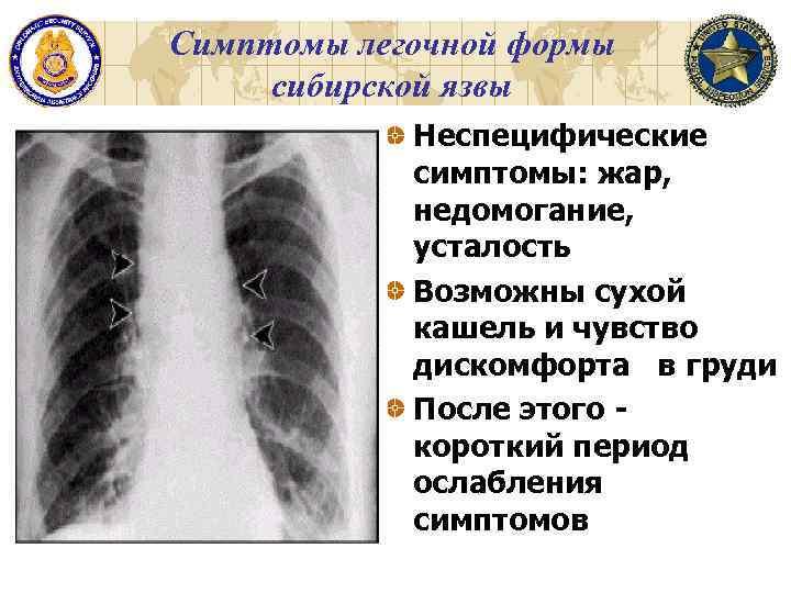 Симптомы легочной формы сибирской язвы Неспецифические симптомы: жар, недомогание, усталость Возможны сухой кашель и