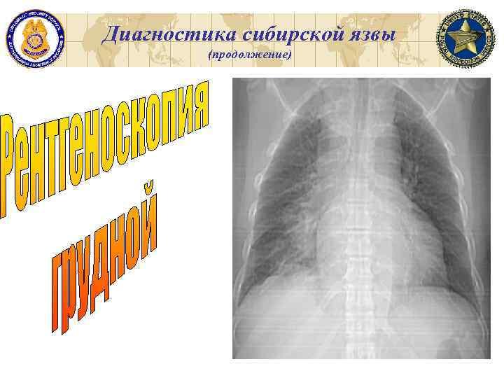 Диагностика сибирской язвы (продолжение)