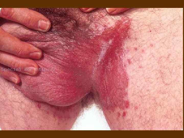 болезни которыми можно заразиться от проститутки