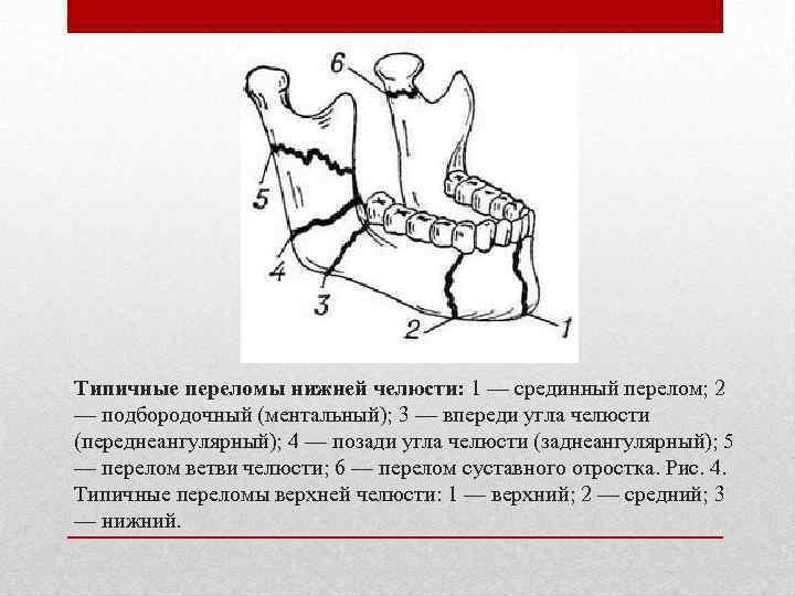 Типичные переломы нижней челюсти: 1 — срединный перелом; 2 — подбородочный (ментальный); 3 —