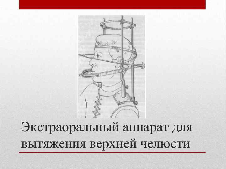 Экстраоральный аппарат для вытяжения верхней челюсти