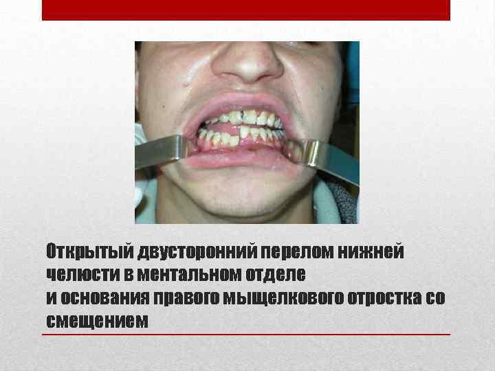 Открытый двусторонний перелом нижней челюсти в ментальном отделе и основания правого мыщелкового отростка со