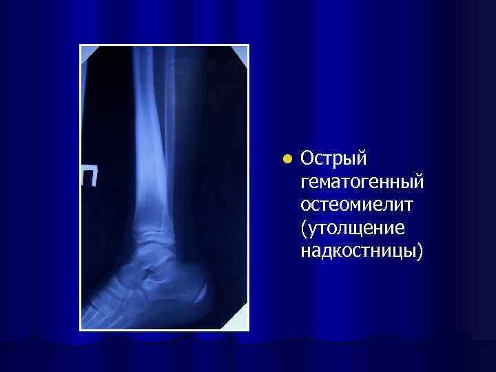 l Острый гематогенный остеомиелит (утолщение надкостницы)