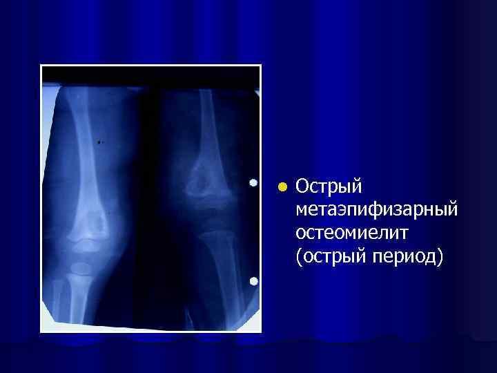 l Острый метаэпифизарный остеомиелит (острый период)