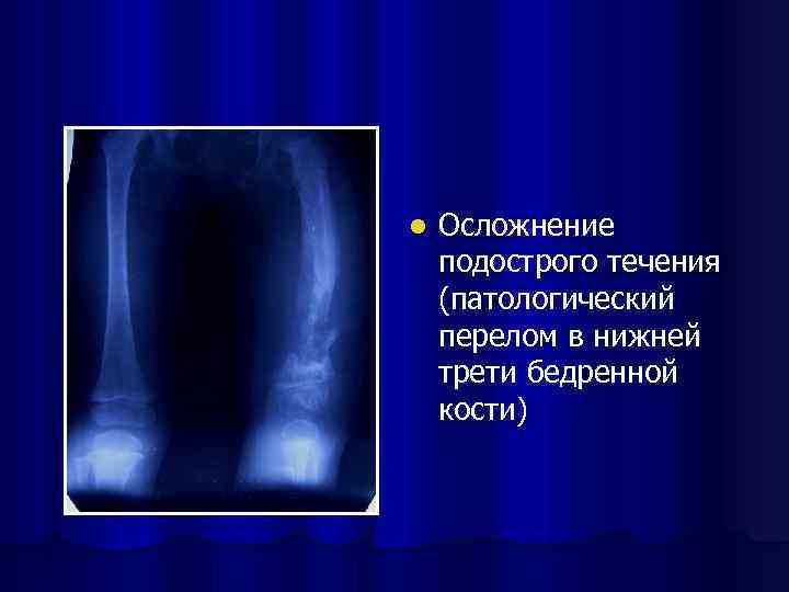 l Осложнение подострого течения (патологический перелом в нижней трети бедренной кости)
