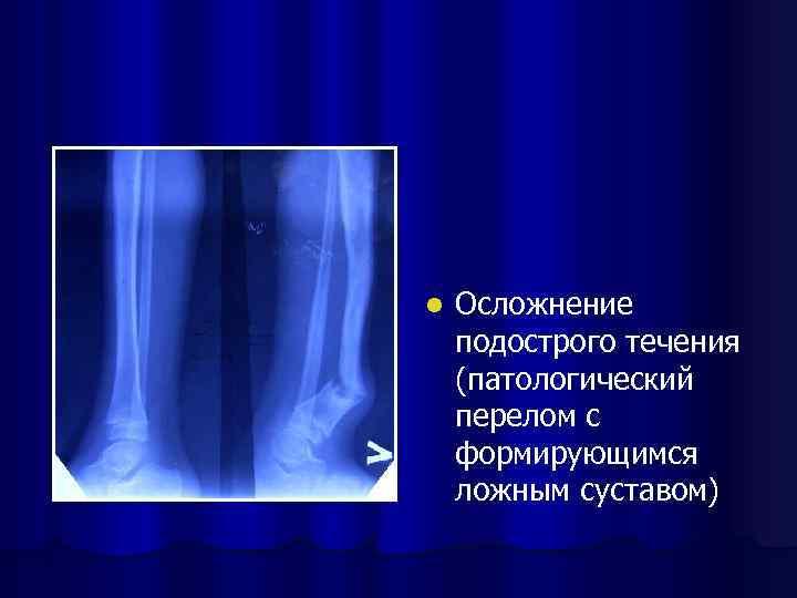 l Осложнение подострого течения (патологический перелом с формирующимся ложным суставом)