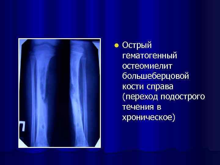 l Острый гематогенный остеомиелит большеберцовой кости справа (переход подострого течения в хроническое)
