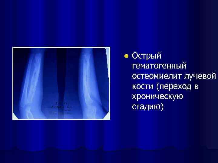 l Острый гематогенный остеомиелит лучевой кости (переход в хроническую стадию)