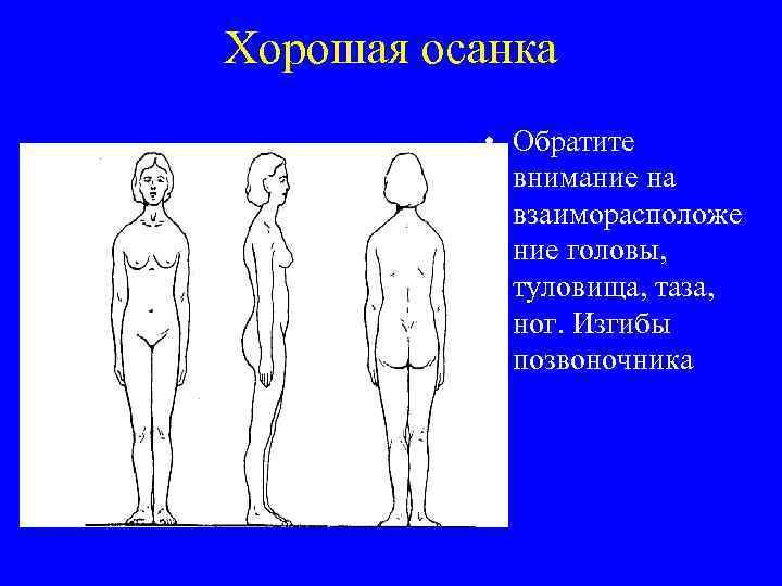 Хорошая осанка • Обратите внимание на взаиморасположе ние головы, туловища, таза, ног. Изгибы позвоночника