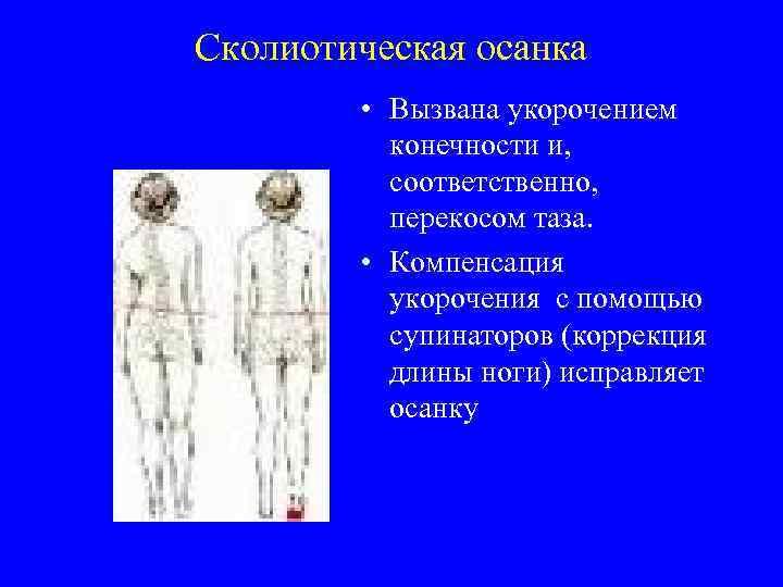 Сколиотическая осанка • Вызвана укорочением конечности и, соответственно, перекосом таза. • Компенсация укорочения с