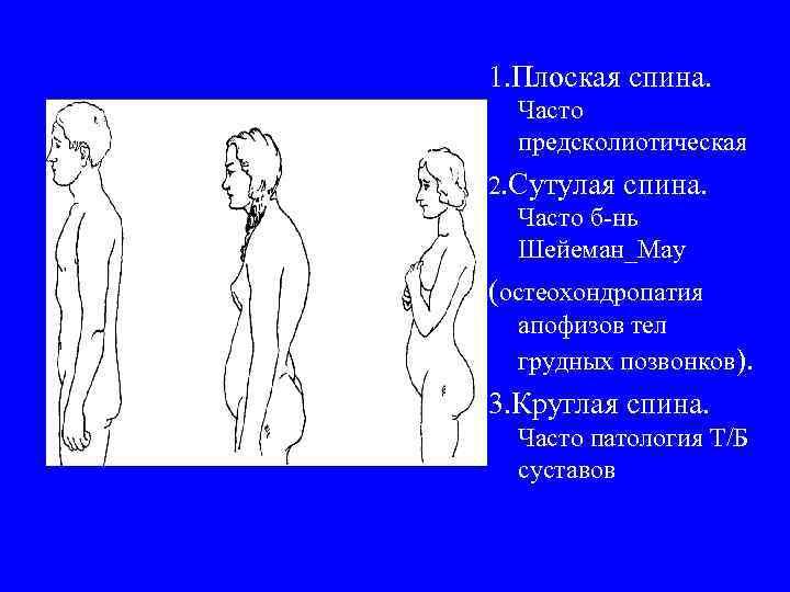 1. Плоская спина. Часто предсколиотическая 2. Сутулая спина. Часто б-нь Шейеман_Мау (остеохондропатия апофизов тел