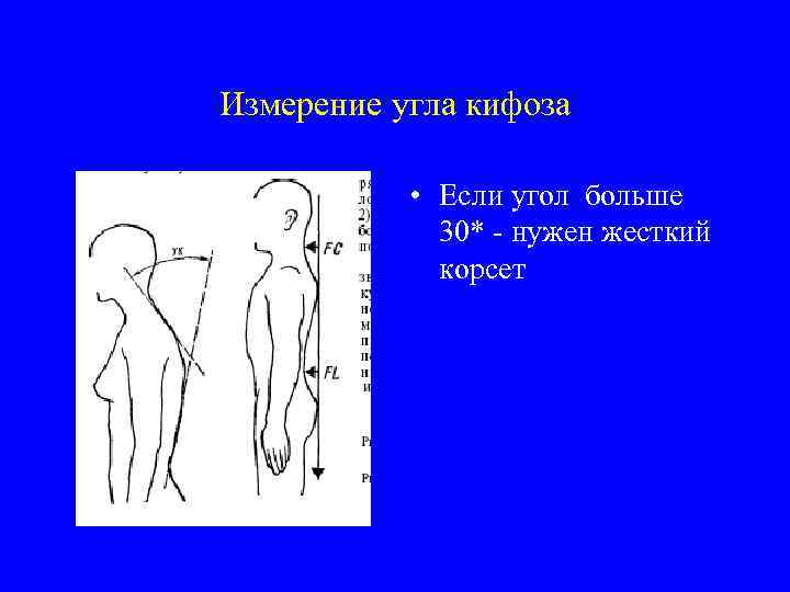 Измерение угла кифоза • Если угол больше 30* - нужен жесткий корсет