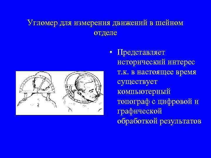 Угломер для измерения движений в шейном отделе • Представляет исторический интерес т. к. в