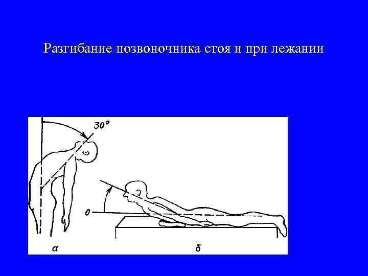 Разгибание позвоночника стоя и при лежании