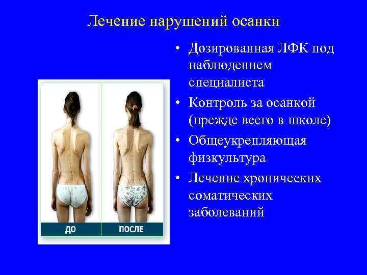 Лечение нарушений осанки • Дозированная ЛФК под наблюдением специалиста • Контроль за осанкой (прежде