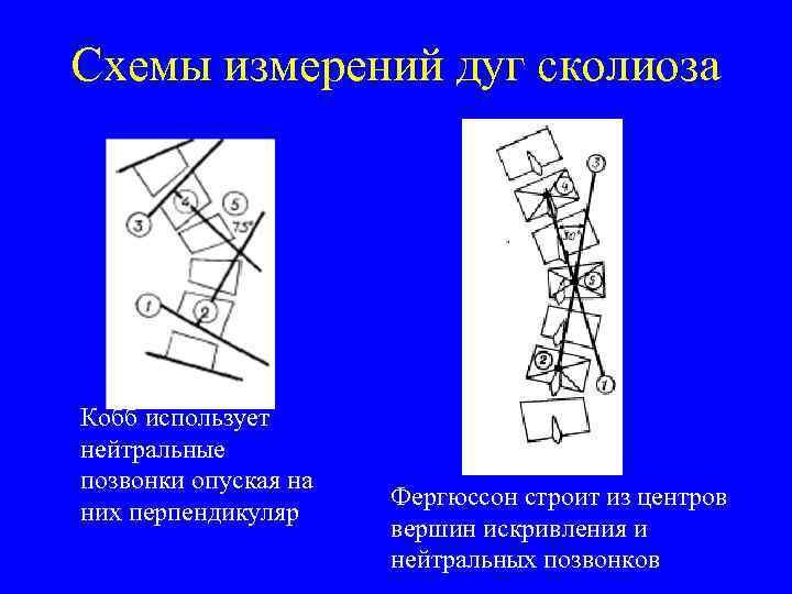 Схемы измерений дуг сколиоза Кобб использует нейтральные позвонки опуская на них перпендикуляр Фергюссон строит