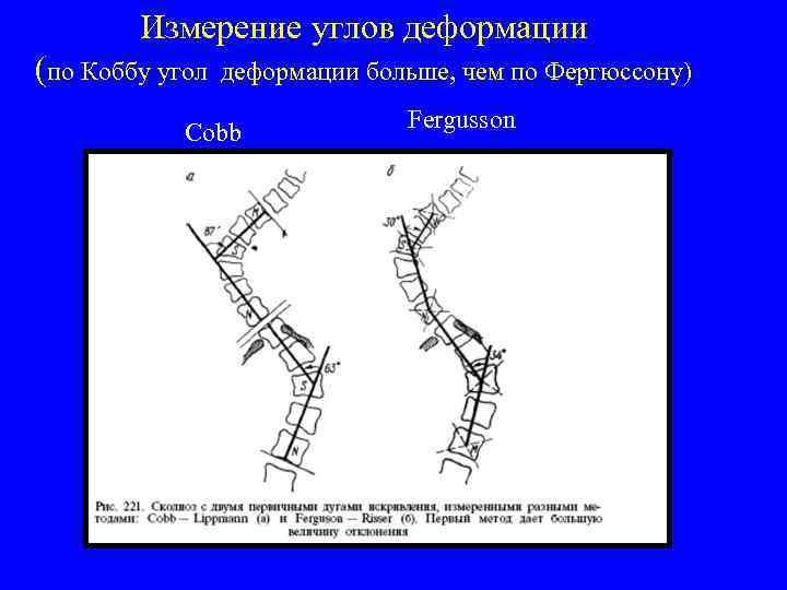Измерение углов деформации (по Коббу угол деформации больше, чем по Фергюссону) Cobb Fergusson