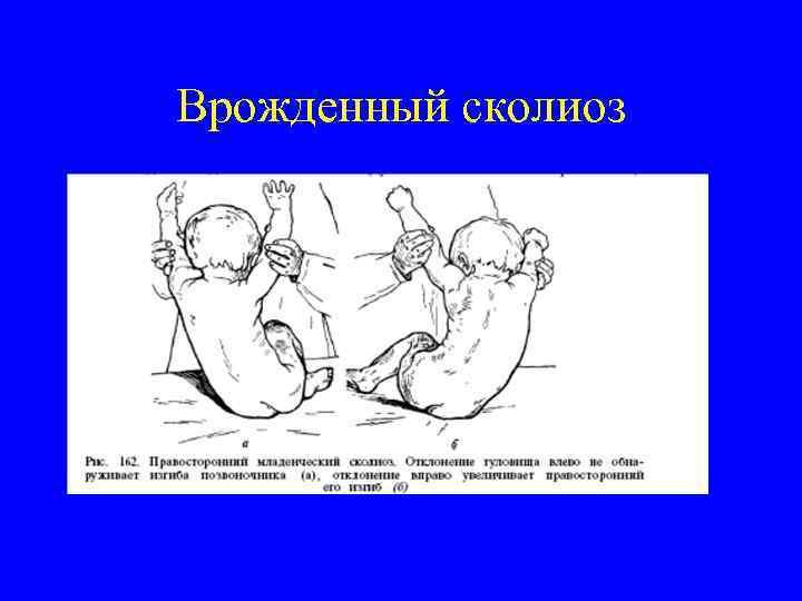 Врожденный сколиоз
