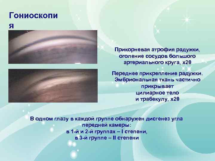 Гониоскопи я Прикорневая атрофия радужки, оголение сосудов большого артериального круга, х20 Переднее прикрепление радужки.