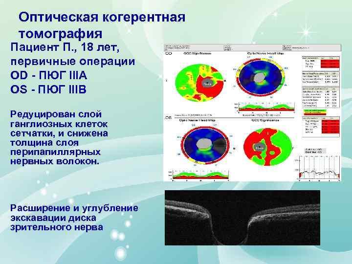 Оптическая когерентная томография Пациент П. , 18 лет, первичные операции OD - ПЮГ IIIA