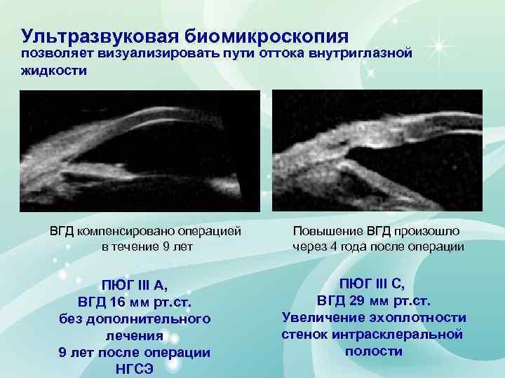 Ультразвуковая биомикроскопия позволяет визуализировать пути оттока внутриглазной жидкости ВГД компенсировано операцией в течение 9