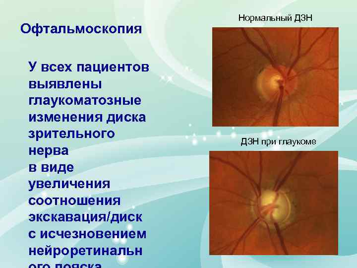Офтальмоскопия У всех пациентов выявлены глаукоматозные изменения диска зрительного нерва в виде увеличения соотношения