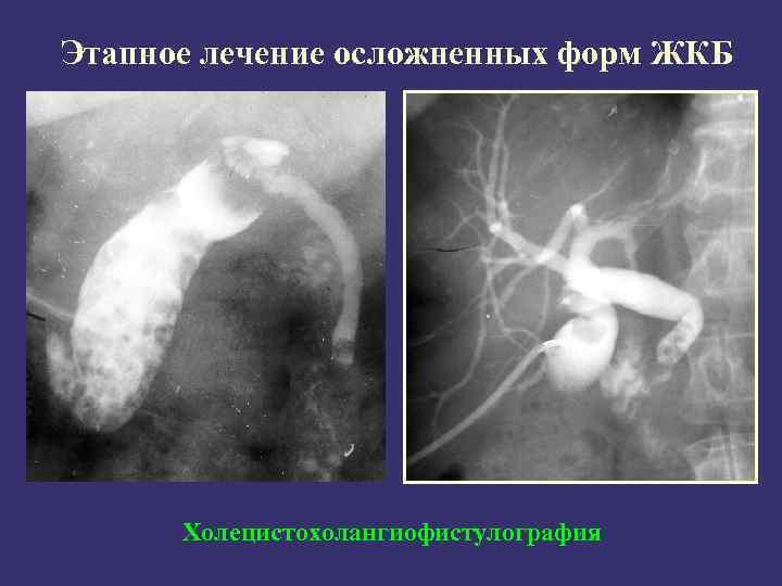 Этапное лечение осложненных форм ЖКБ Холецистохолангиофистулография