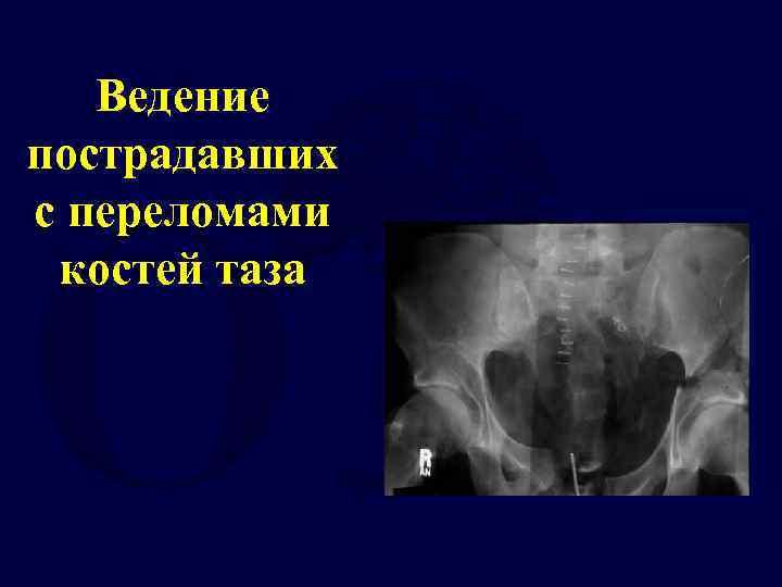 Ведение пострадавших с переломами костей таза