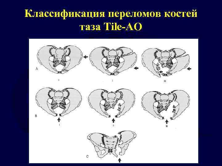 Классификация переломов костей таза Tile-AO